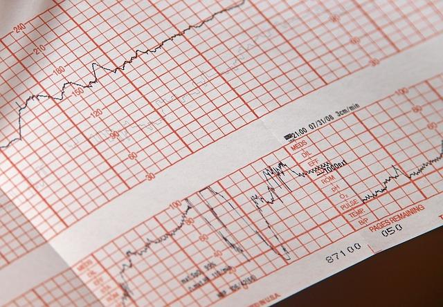 Přenosné EKG usnadní a urychlí vyšetření
